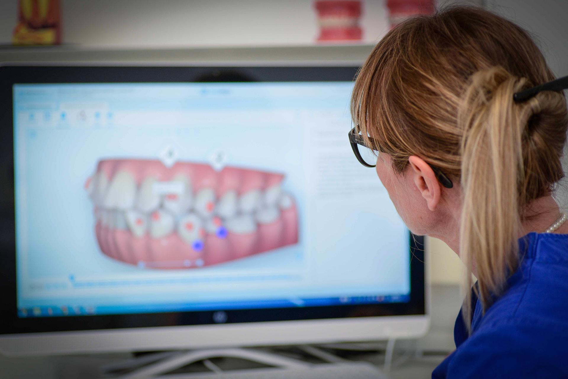 ortodonzia invisibile Opara