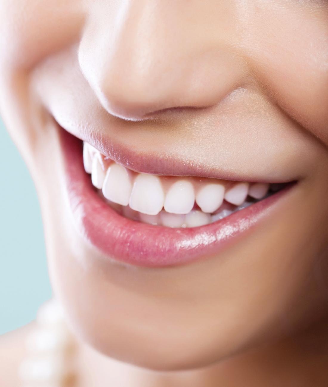 sbiancamento denti Pinerolo