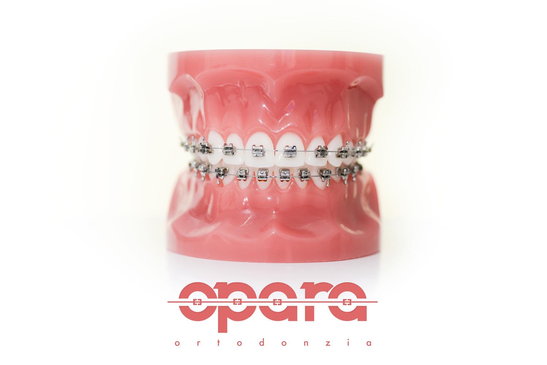 Dentisti a pinerolo apparecchio