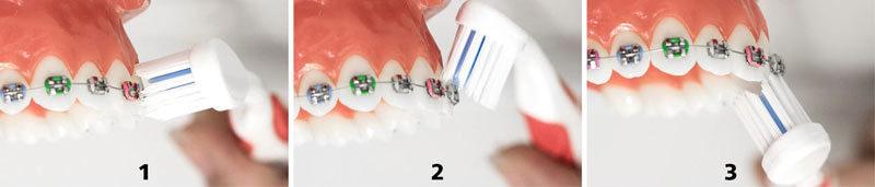 igiene orale ortodonzia
